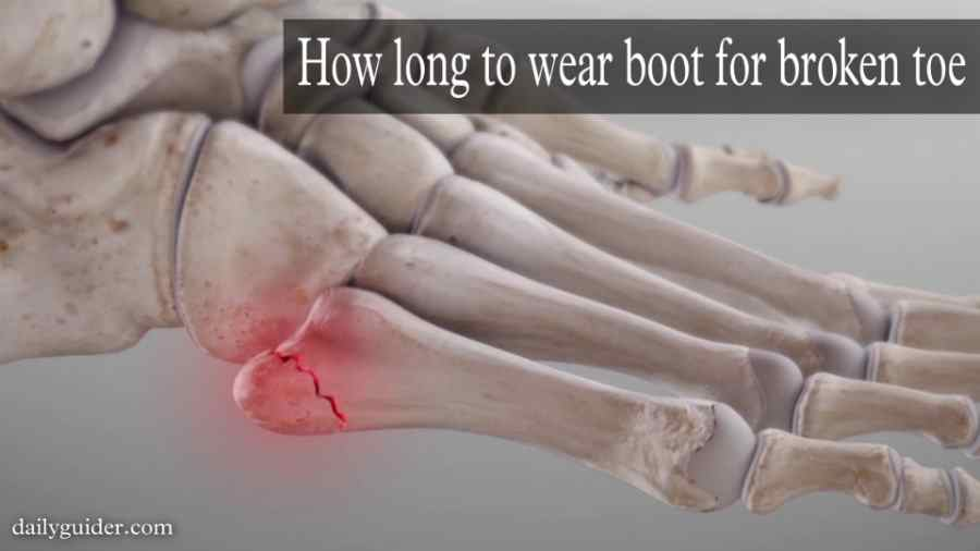 how long to wear boot for broken toe